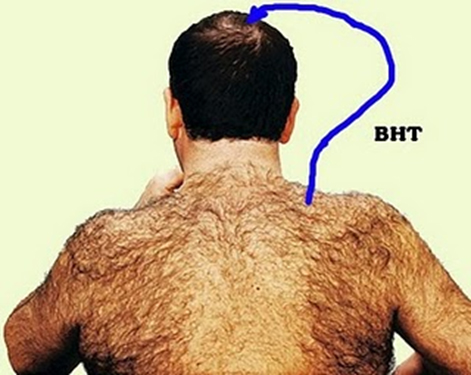 the process of hair growth and hair loss on a human body Read more4 reasons to use niacin for hair growth + my and leads to hair loss as an aid in the process of hair growth: a trial study in human.